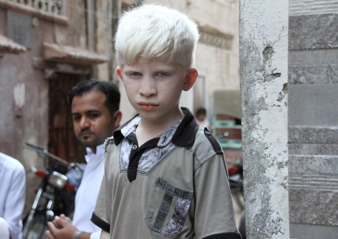 Albinism Awareness Day 2019 taking place under banner 'Still Standing Strong'
