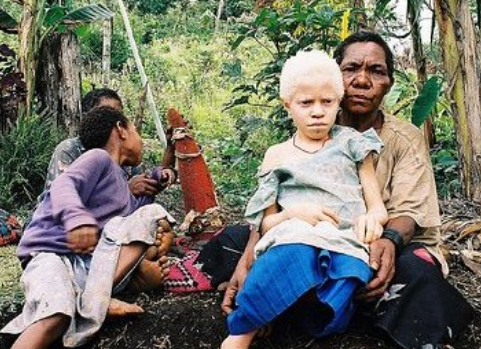 Killings of people with albinism increase during pandemic: UN expert