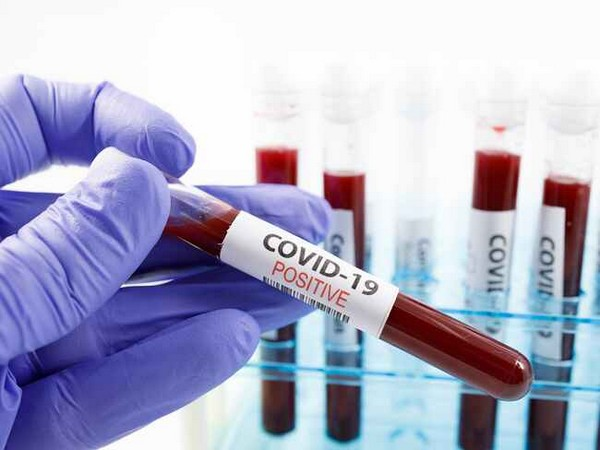 Andhra Pradesh records 753 new COVID-19 cases, 13 deaths