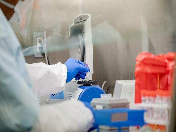 Ethiopia launches coronavirus antibody testing to check infection rates and immunity