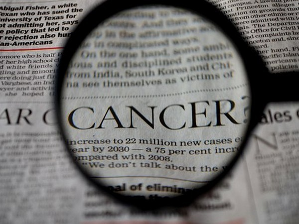 Research shows different types of cancers likely to spread to specific brain areas