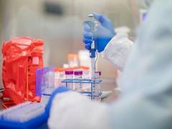 Slovakia's daily coronavirus cases jump back to 20